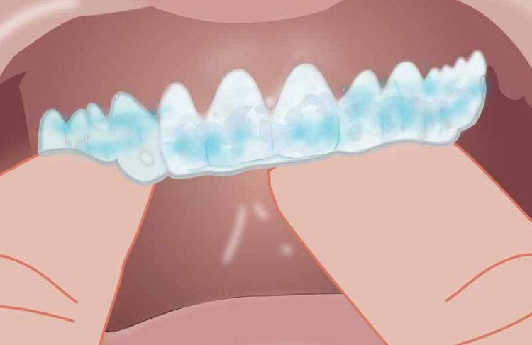 image représentant une étape d'un blanchiment des dents, dentisterie esthétique