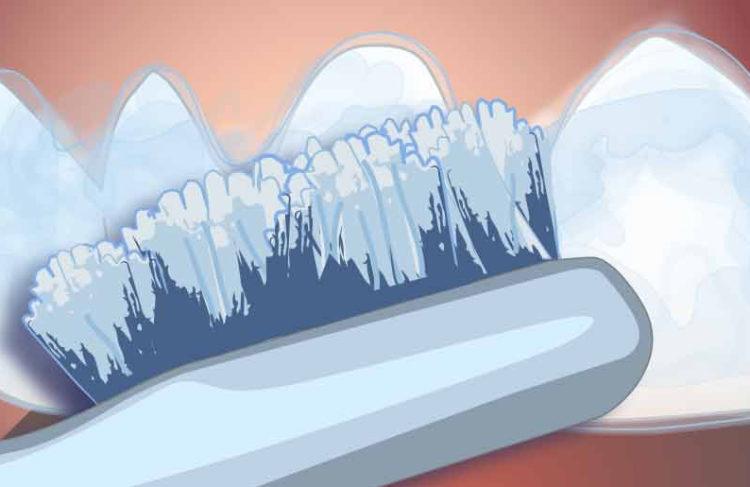 illustration d'un brossage de dents pour le blanchiment, dentisterie esthétique