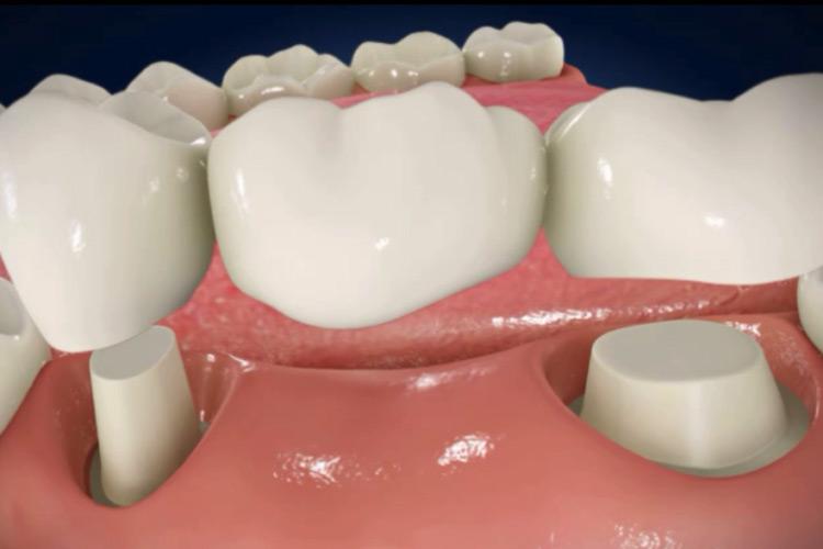 représentation 3d d'un bridge dentaire, clinique dentaire newport pantin