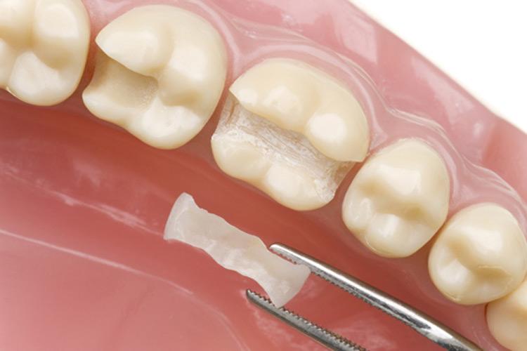 photo de dents pour présenter des soins conservateurs, clinique dentaire newport pantin
