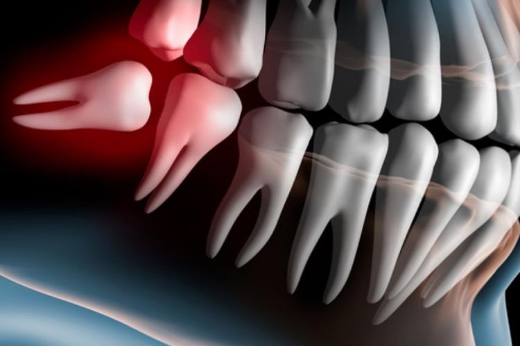 représentation 3d d'une dent de sagesse qui pousse mal, clinique dentaire newport pantin